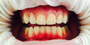 Протезирование передних зубов керамическими винирами импресс фото после лечения