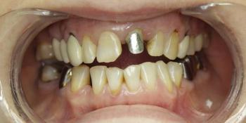 Коронка металлокерамическая и вкладка (кобальт хром) фото до лечения